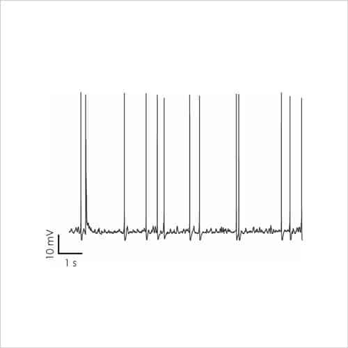 Fig5a Rat cortical neurons 1