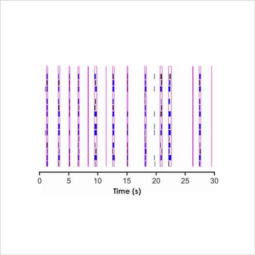 Fig5b Rat cortical neurons 1