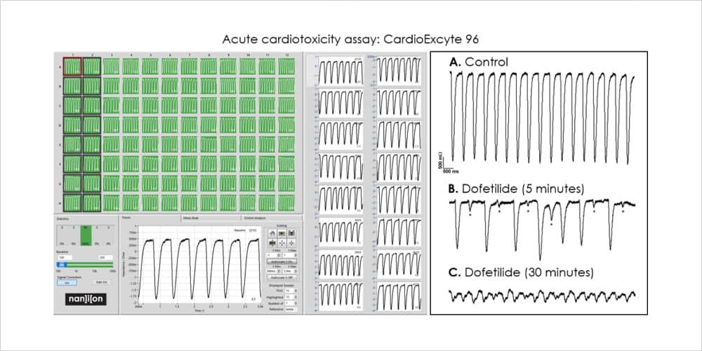 Figure 2 Acute Cardiotoxicity Assay CardioExcyte96