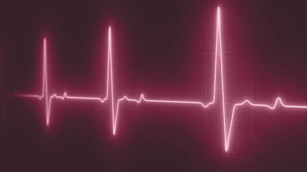 Metrion Biosciences Cardiac Safety Screening Services