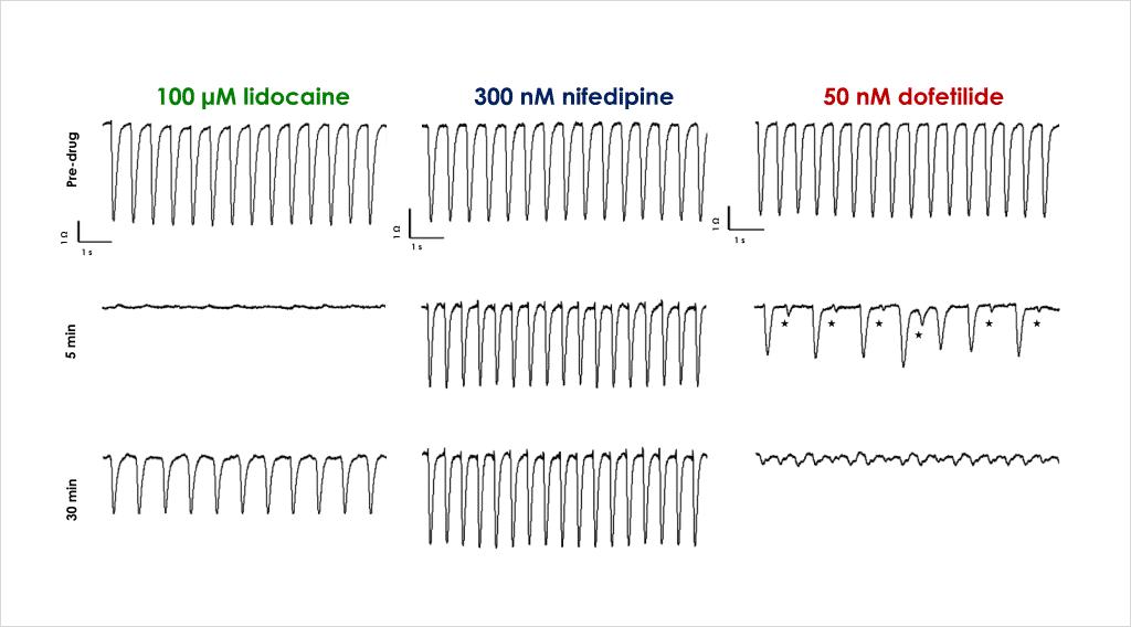 Figure 3 Acute cardiac effects 1