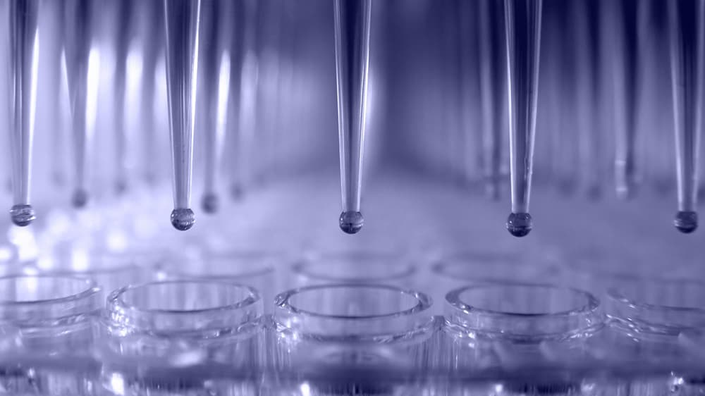 Metrion Biosciences Ion Channel Screening Services 1920x1443 1
